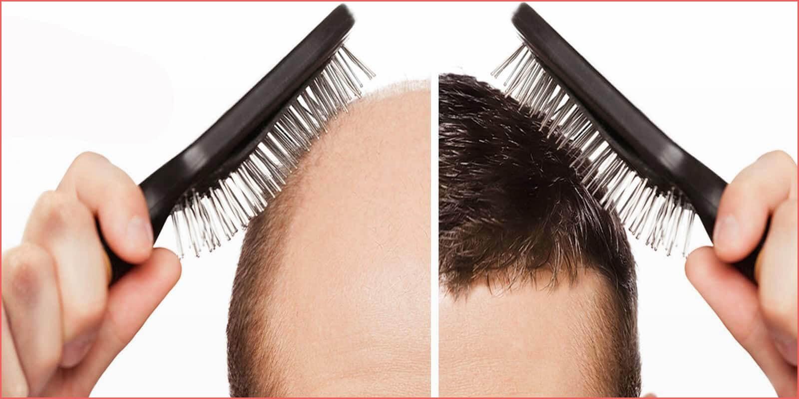 زراعة الشعر في تركيا - Zty Health Istanbul