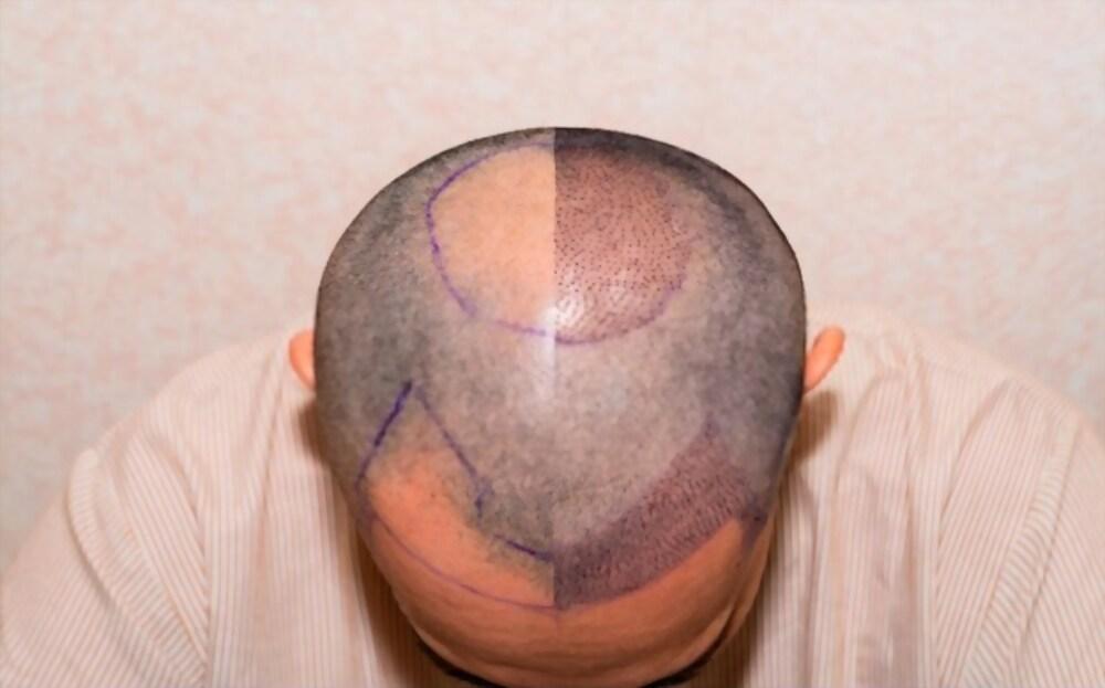 زراعة الشعر FUT