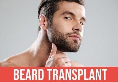 Beard Transplant turkey