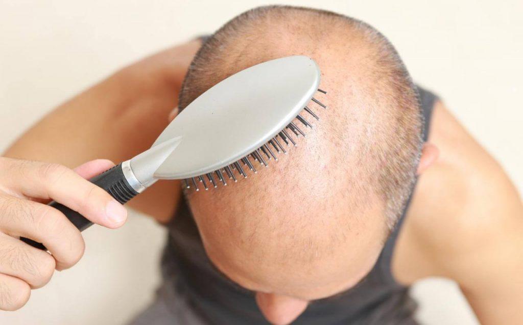 Fut-Haartransplantation Türkei