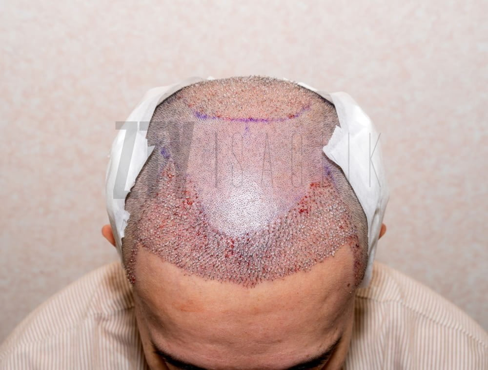 Who-Can-Have-Hair-Transplantation