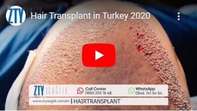 Greffe de cheveux en Turquie -2
