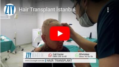 Greffe de cheveux en Turquie -3