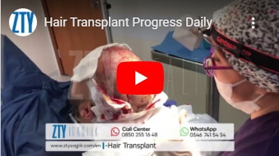Haartransplantation Türkei-1
