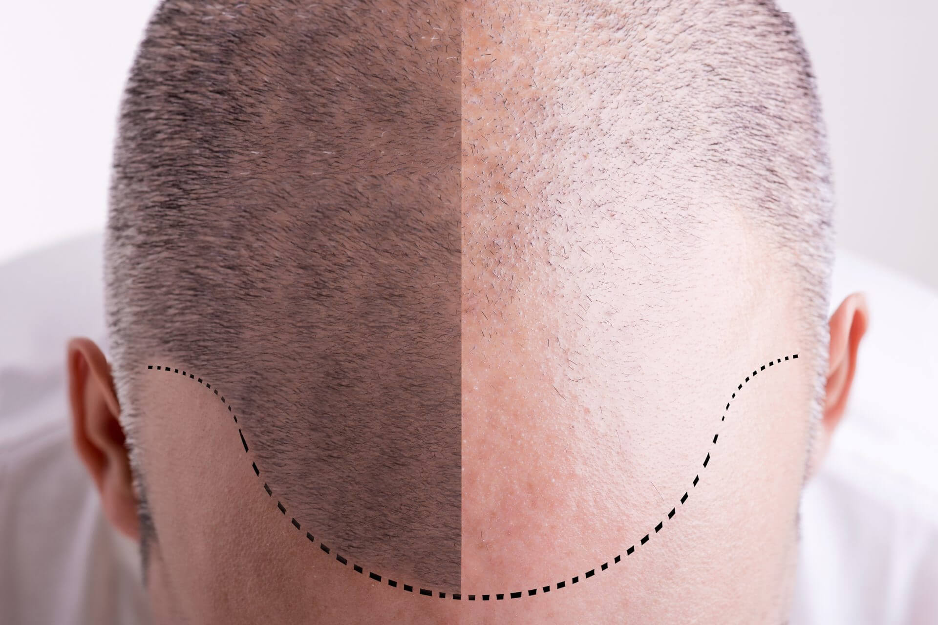 Is hair transplantation permanent
