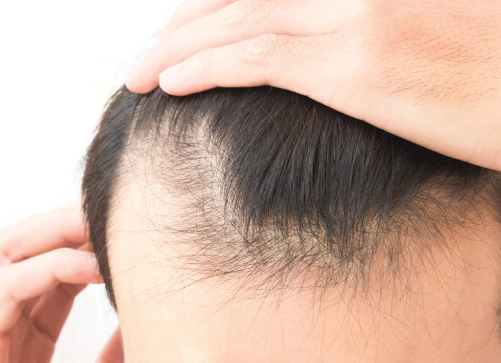 What is the difference between FUE and FUT hair transplantation
