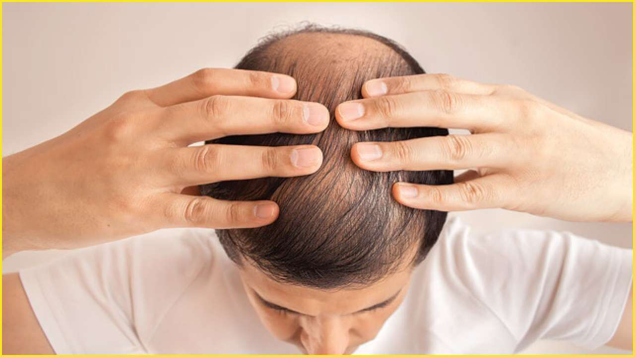 Patients at Risk of Baldness