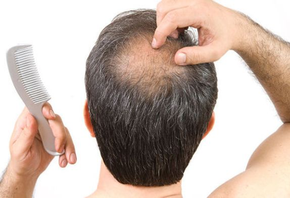 The reasons for Hair Loss In Men - Zty Hair Transplant Turkey