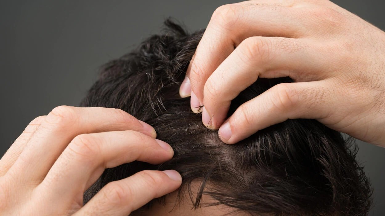 Le COVID-19 et La Greffe de Cheveux - zty hair transplant turkey