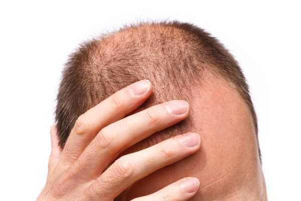 Woher weiß ich, ob meine Haartransplantation erfolgreich ist - zty hair transplant turkey