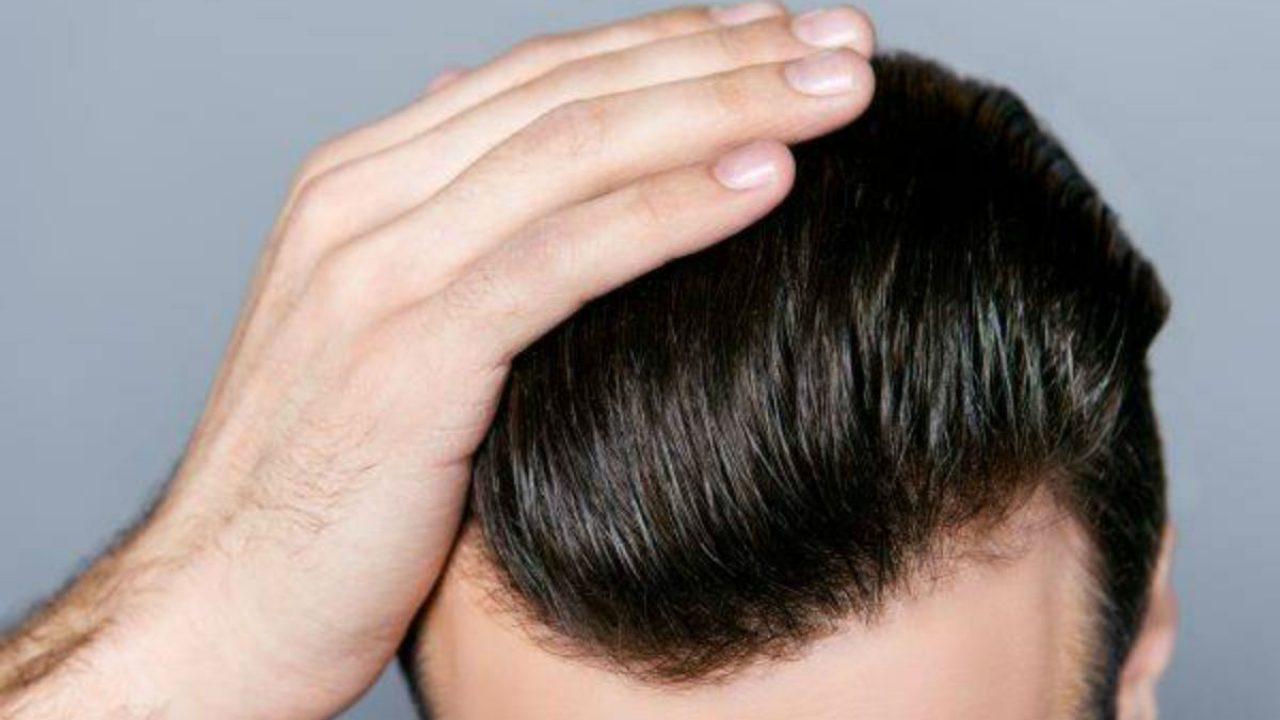 COVID-19 e il trapianto di capelli - zty health