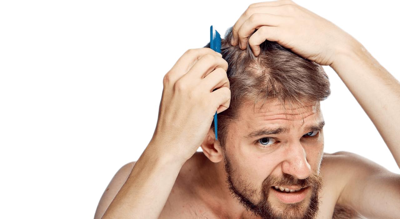 Causas da perda de cabelo em homens - zty health Istanbul