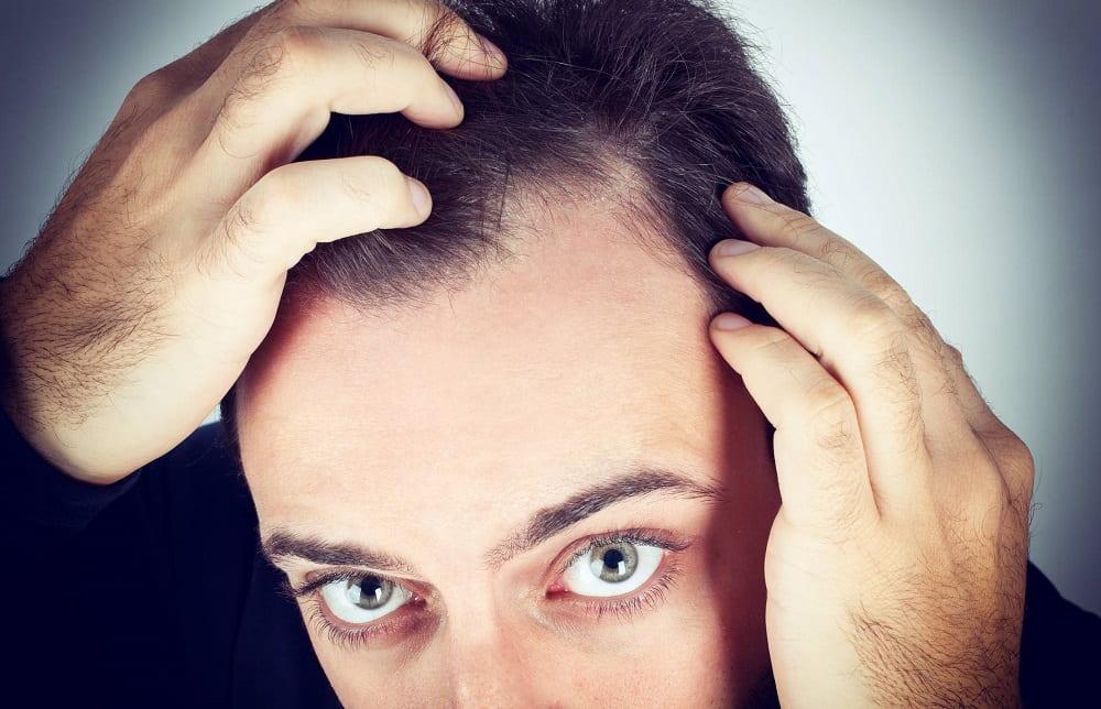 Causes de la perte de cheveux chez les hommes - zty health Istanbul