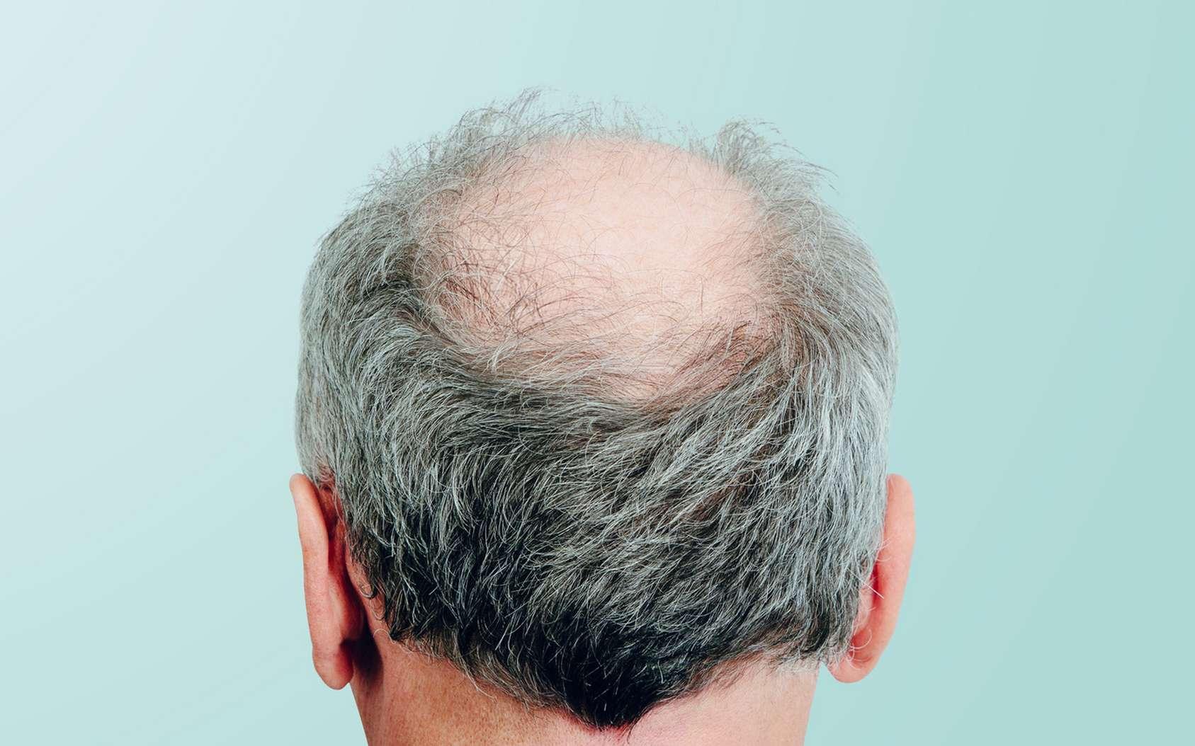 Chute de cheveux liée au stress - zty health