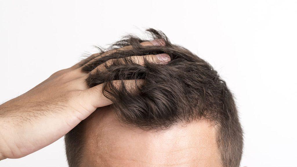 Il trapianto di capelli è permanente - zty health Istanbul