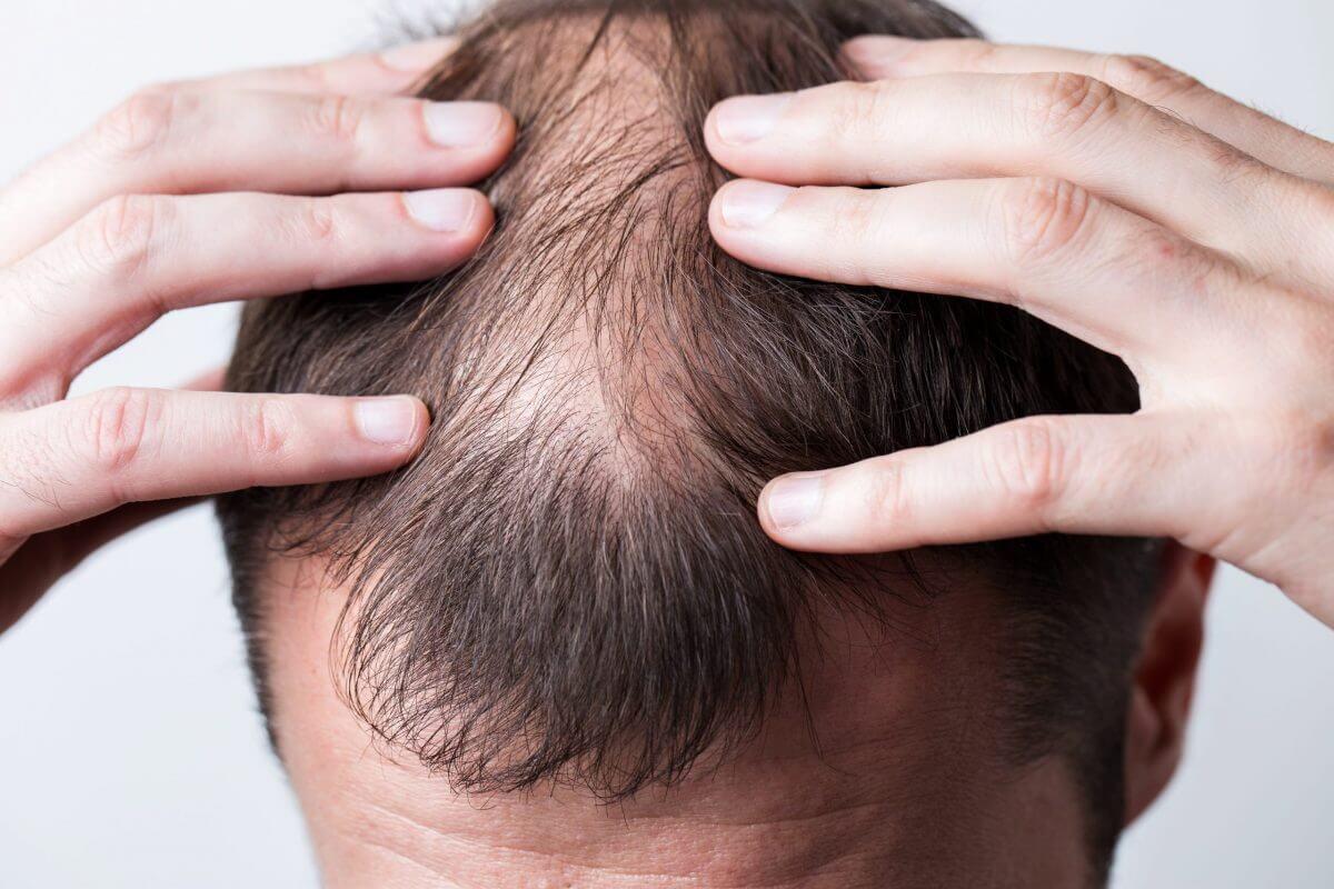 Il trapianto di capelli può causare una lesione ai nervi - Zty Health Istanbul
