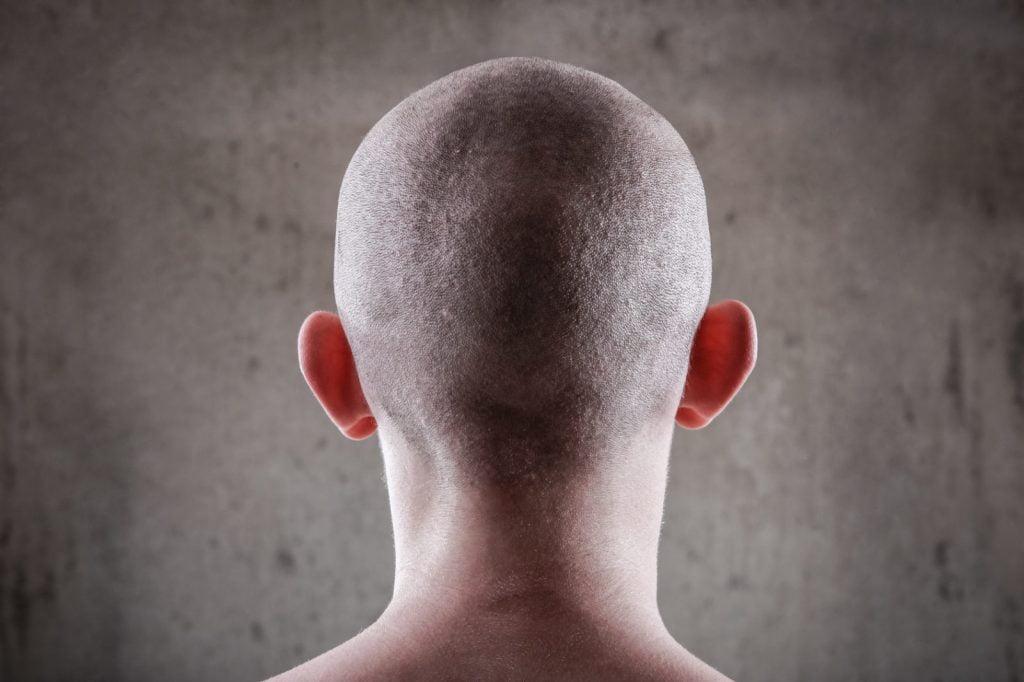 Ist Haartransplantation dauerhaft - zty health Istanbul Turkei