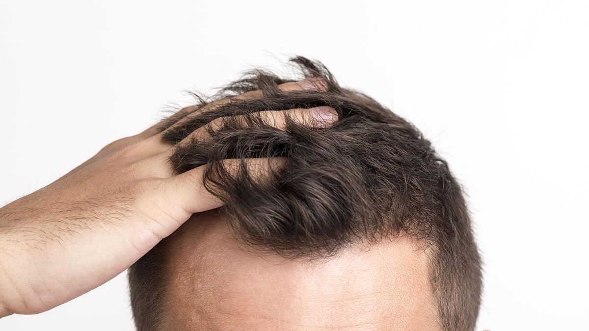 Quanto è efficace il trapianto di capelli - zty health Istanbul