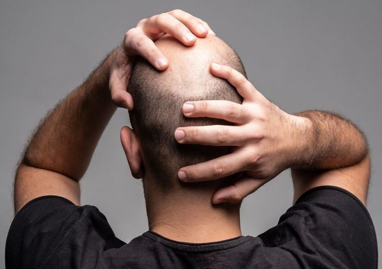 Ursachen für Haarausfall bei Männern - Zty