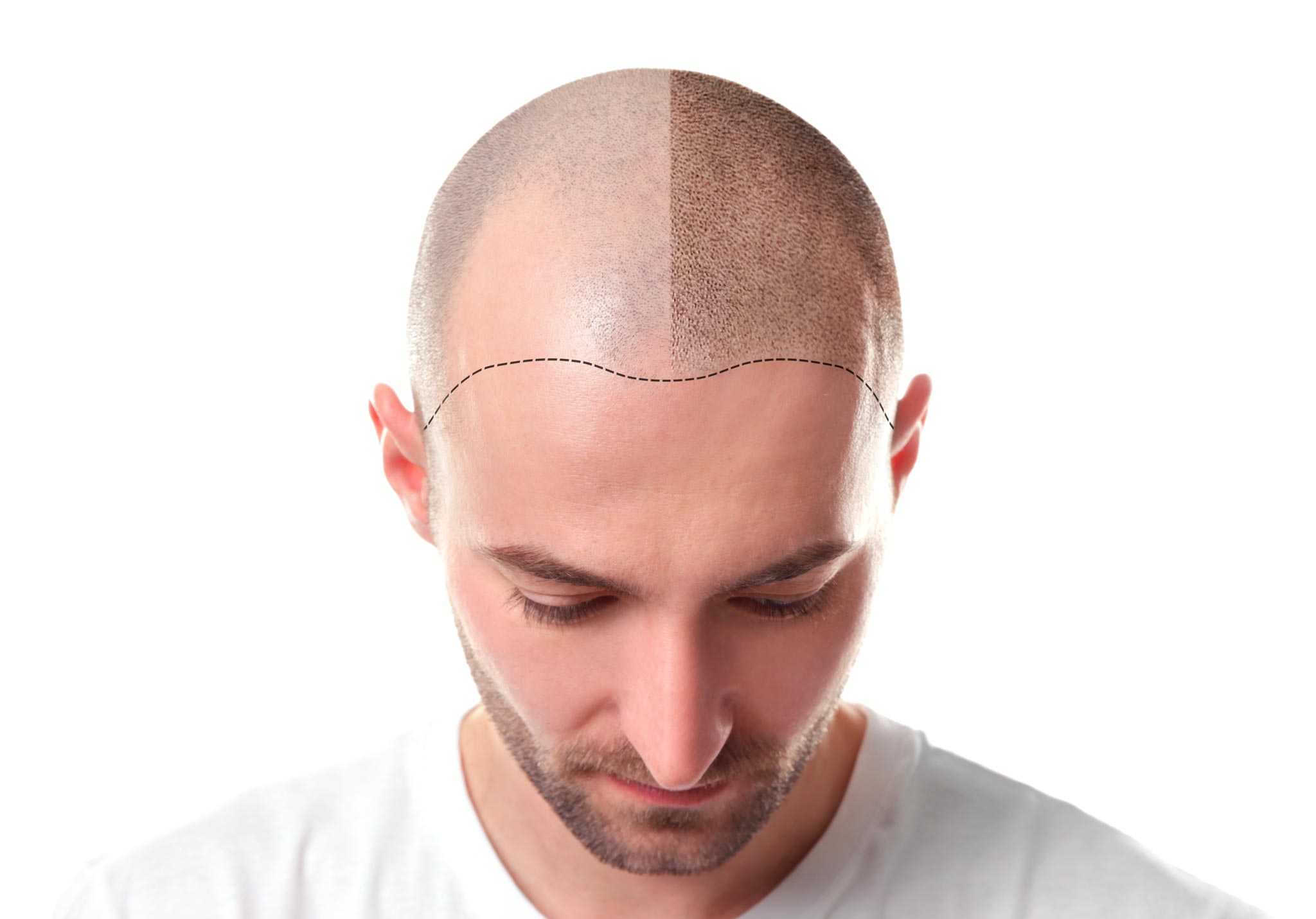 Was ist der Unterschied zwischen FUE- und FUT-Haartransplantation - Zty Health Istanbul