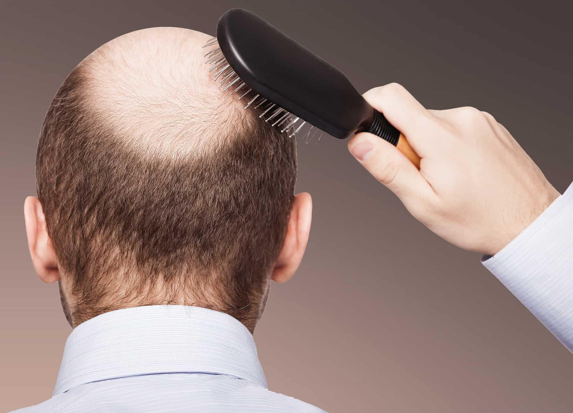 ما مدى نجاح زراعة الشعر؟ - Zty Health Istanbul