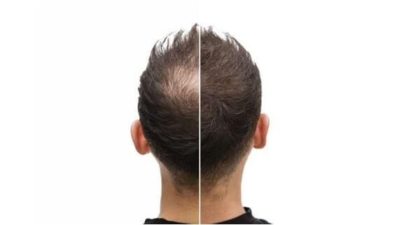 Combien de temps dure une greffe de cheveux - Zty Health Istanbul