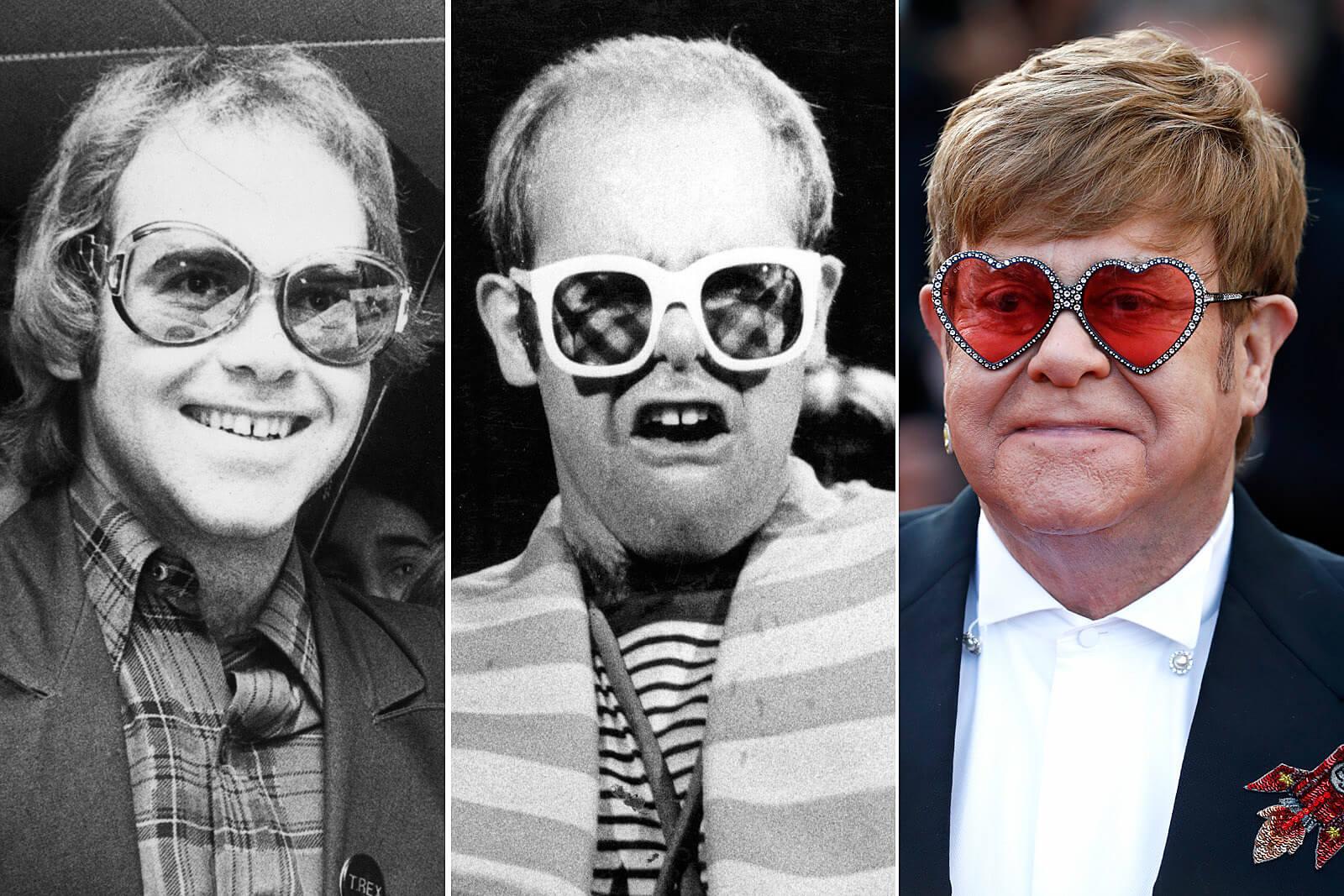 Elton John's Hair Transplant - Zty Hair Transplant Istanbul