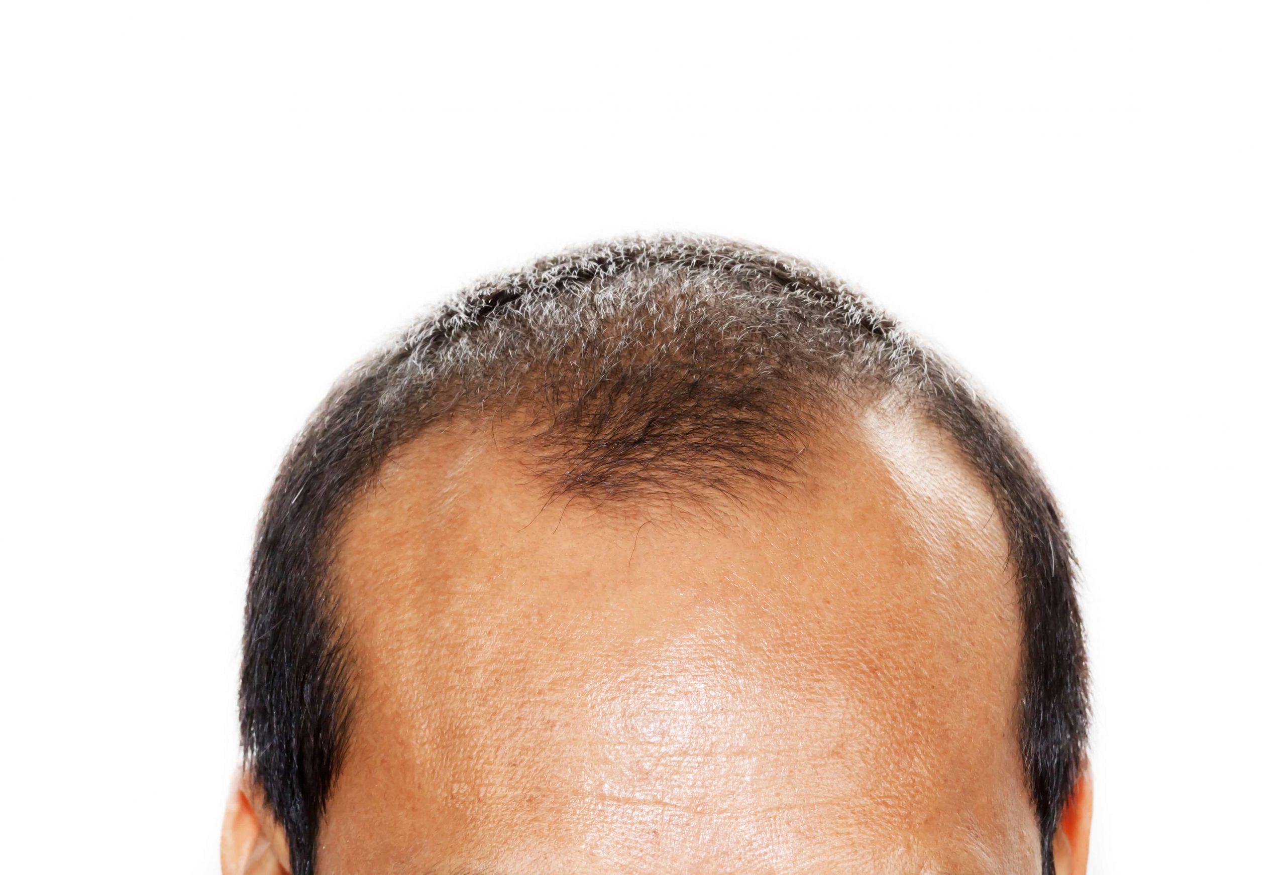 Greffe de cheveux DHI (implantation directe de cheveux) - Zty Health Istanbul