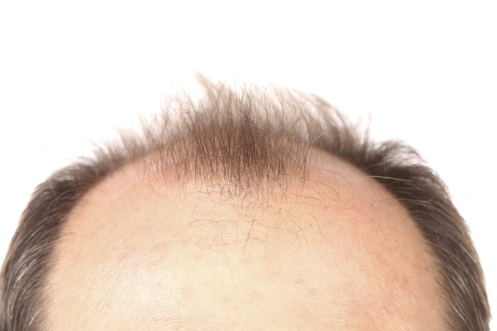 How long does a hair transplant surgery take - Zty Health Istanbul