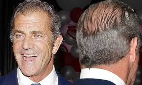 Mel Gibson's Hair Transplant - Zty Health Istanbul