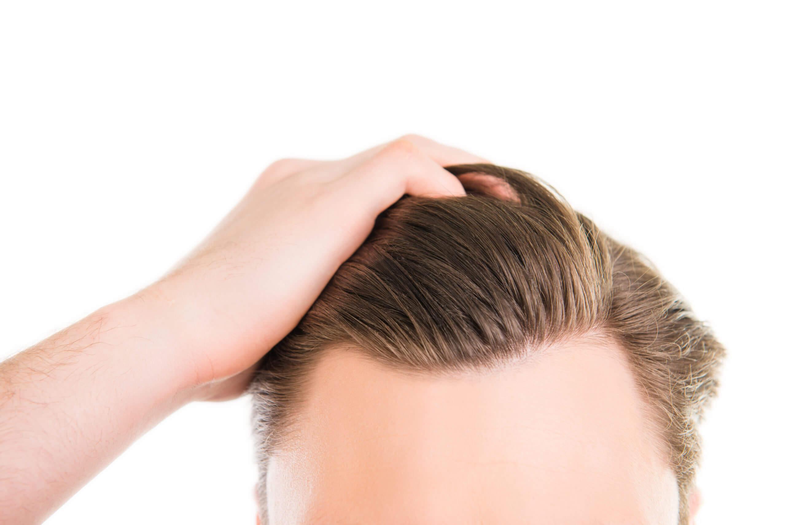Quand l'œdème passe-t-il après la greffe de cheveux - Zty Health Istanbul