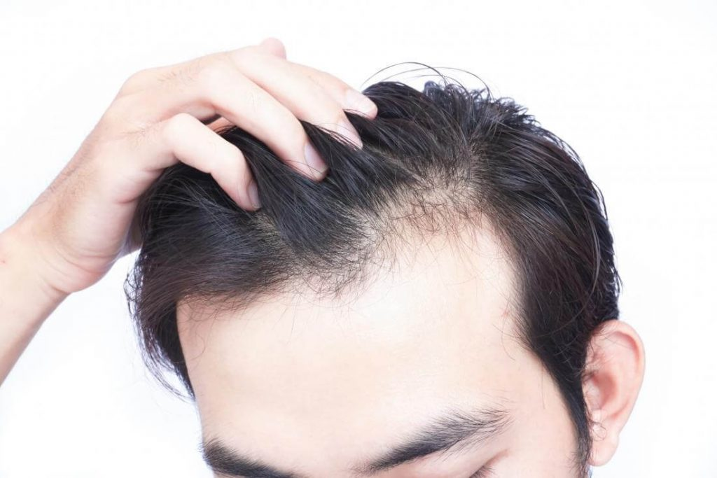 Second hair transplant - zty health Istanbul