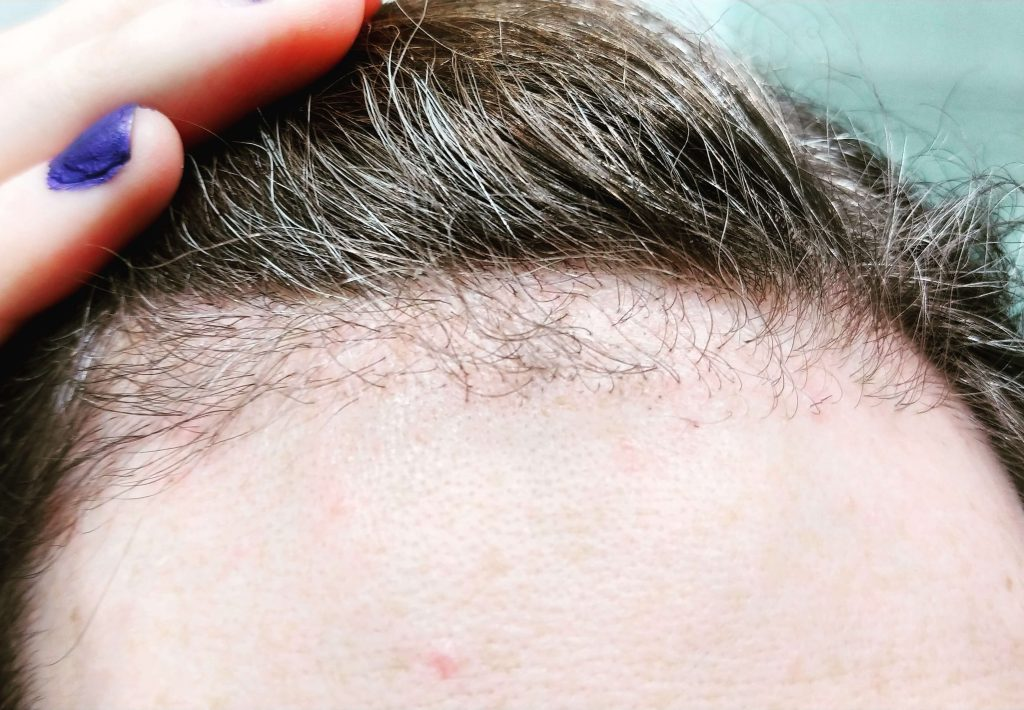 When Does Oedema Pass Over After Hair Transplant - Zty Health Istanbul