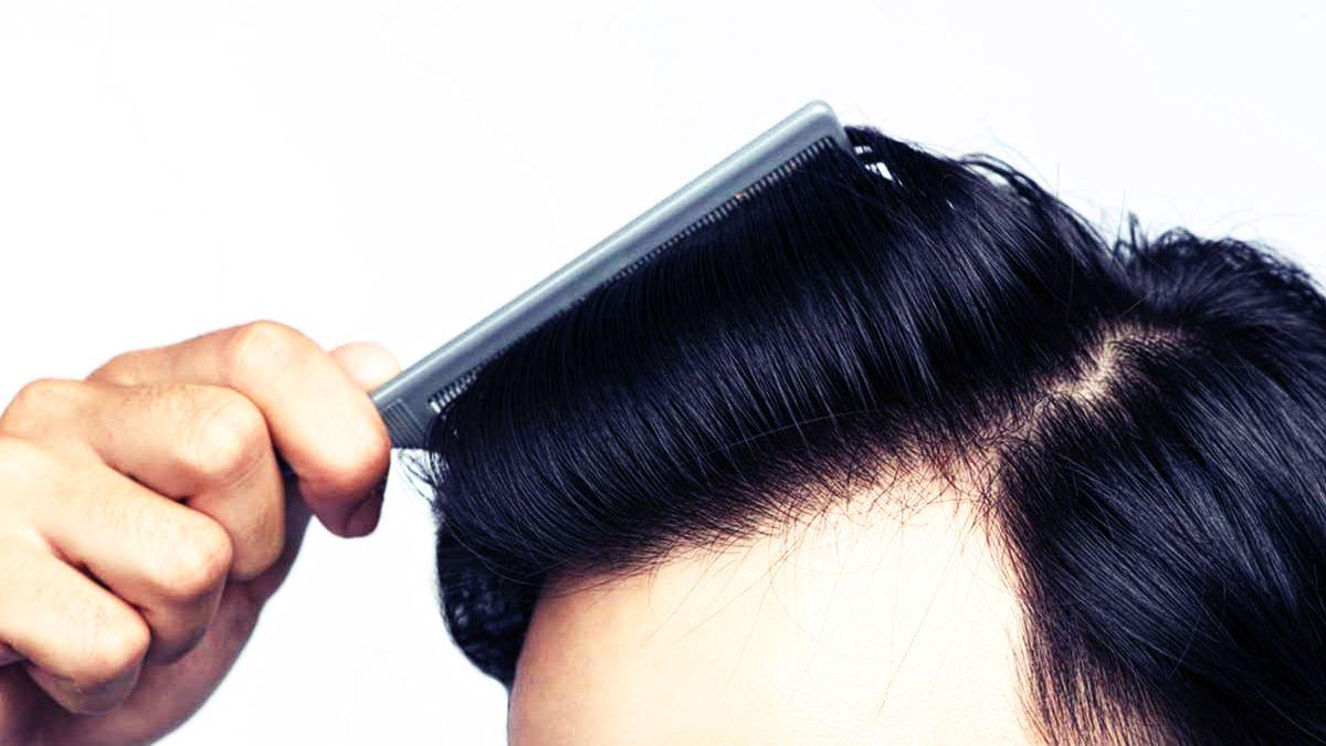 هل يمكنني شرب الكحول قبل أو بعد زراعة الشعر؟ Zty Hair Transplant Turkey