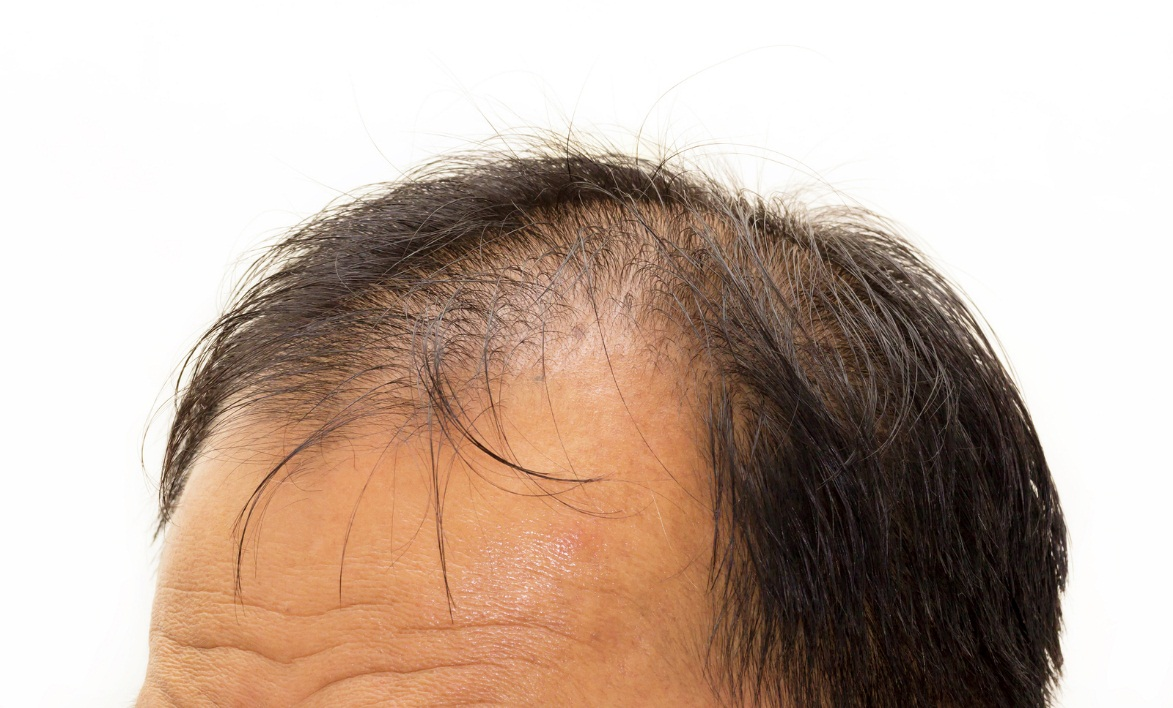 Hair transplantation as protection - Zty Hair Transplant Turkey - Istanbul