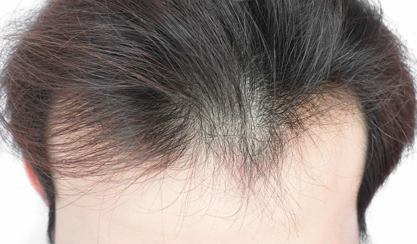 How do you recognize thinning hair - Zty Hair Transplant Turkey - Istanbul