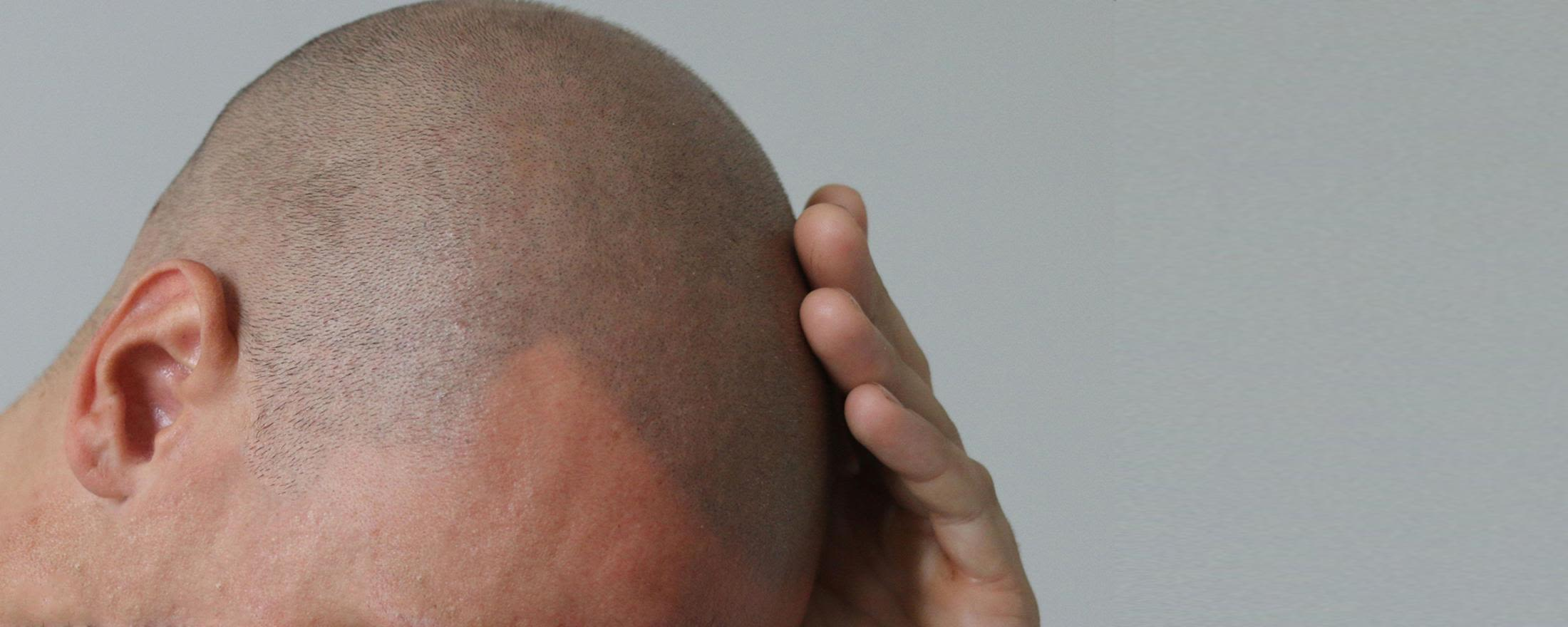 Micro hair pigmentation prices - Zty Hair Transplant Turkey