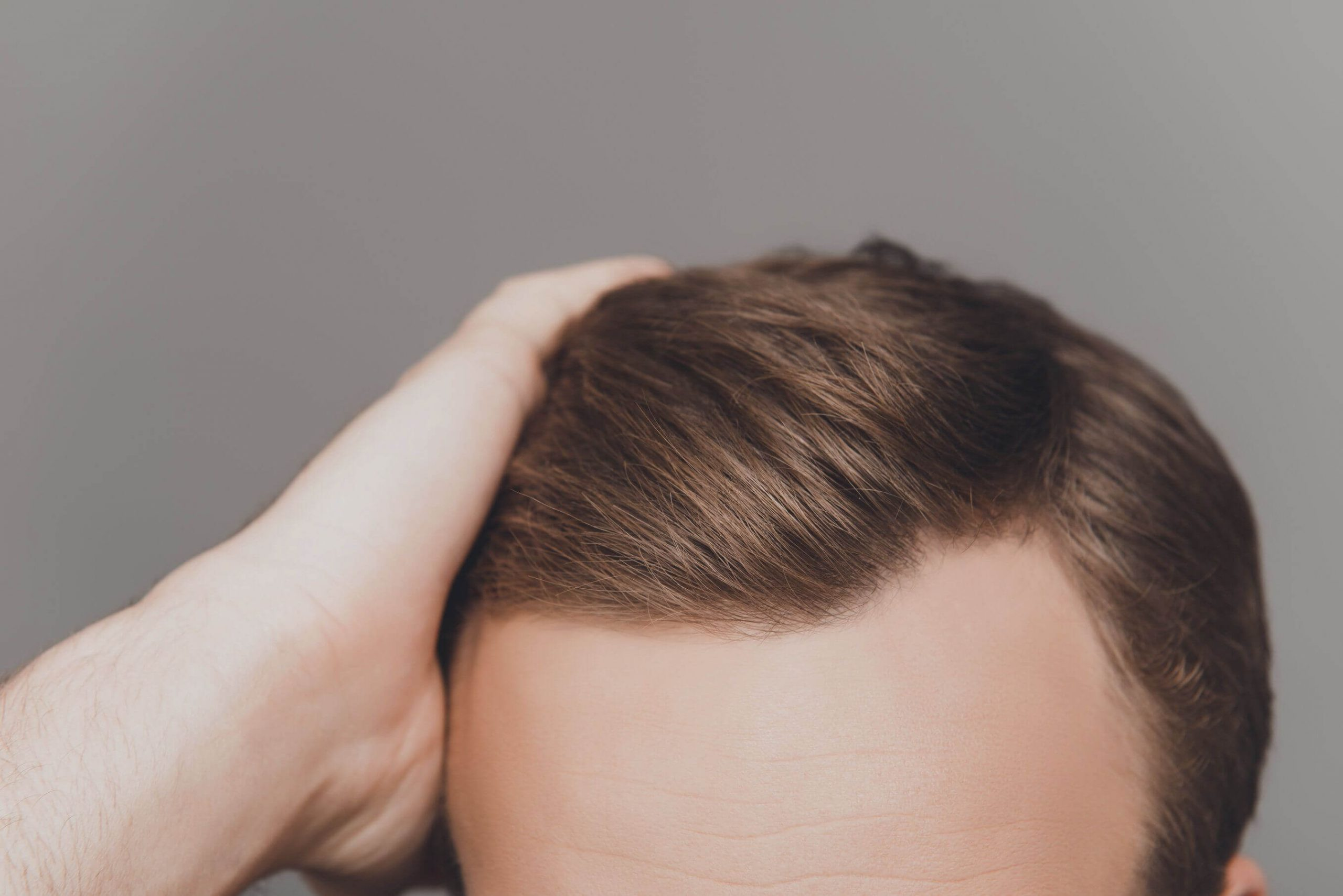 Preventing bad hair transplant - Zty Hair Transplant Turkey