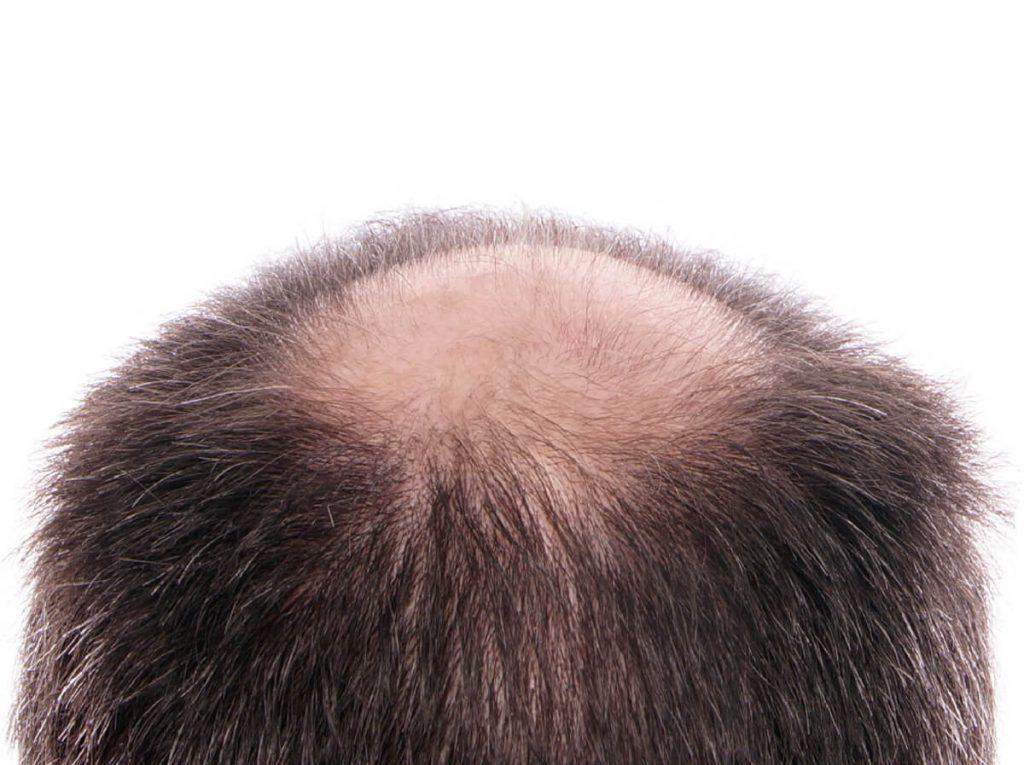 Quando l'edema passa dopo il trapianto di capelli - Zty Trapianto Capelli in Turchia