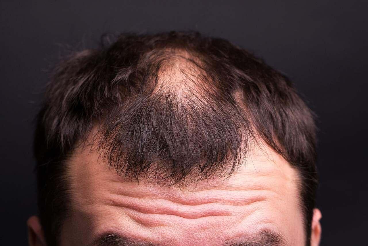 Synthetischer Haartransplantation - Zty Haartransplantation Türkei