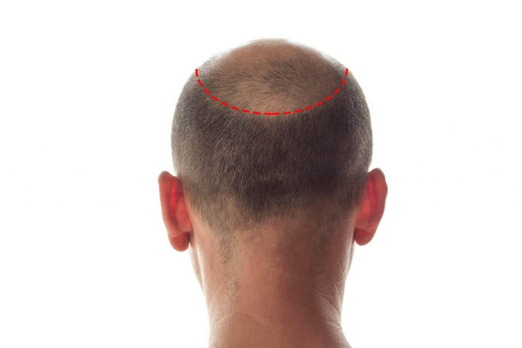 Transplante de cabelo e clonagem de cabelo com células-tronco - Zty Transplante Capilar Turquia
