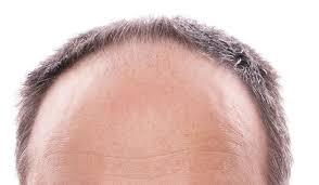 Trapianto di capelli e clonazione di capelli con cellule staminali - Zty Trapianto Capelli in Turchia - Istanbul