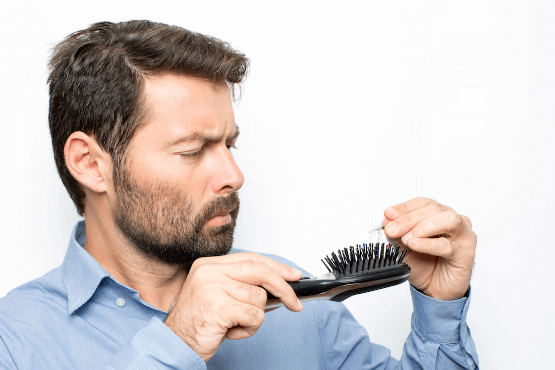 Well known Dutch people who opted for a hair transplant - Zty Hair Transplantation Istanbul