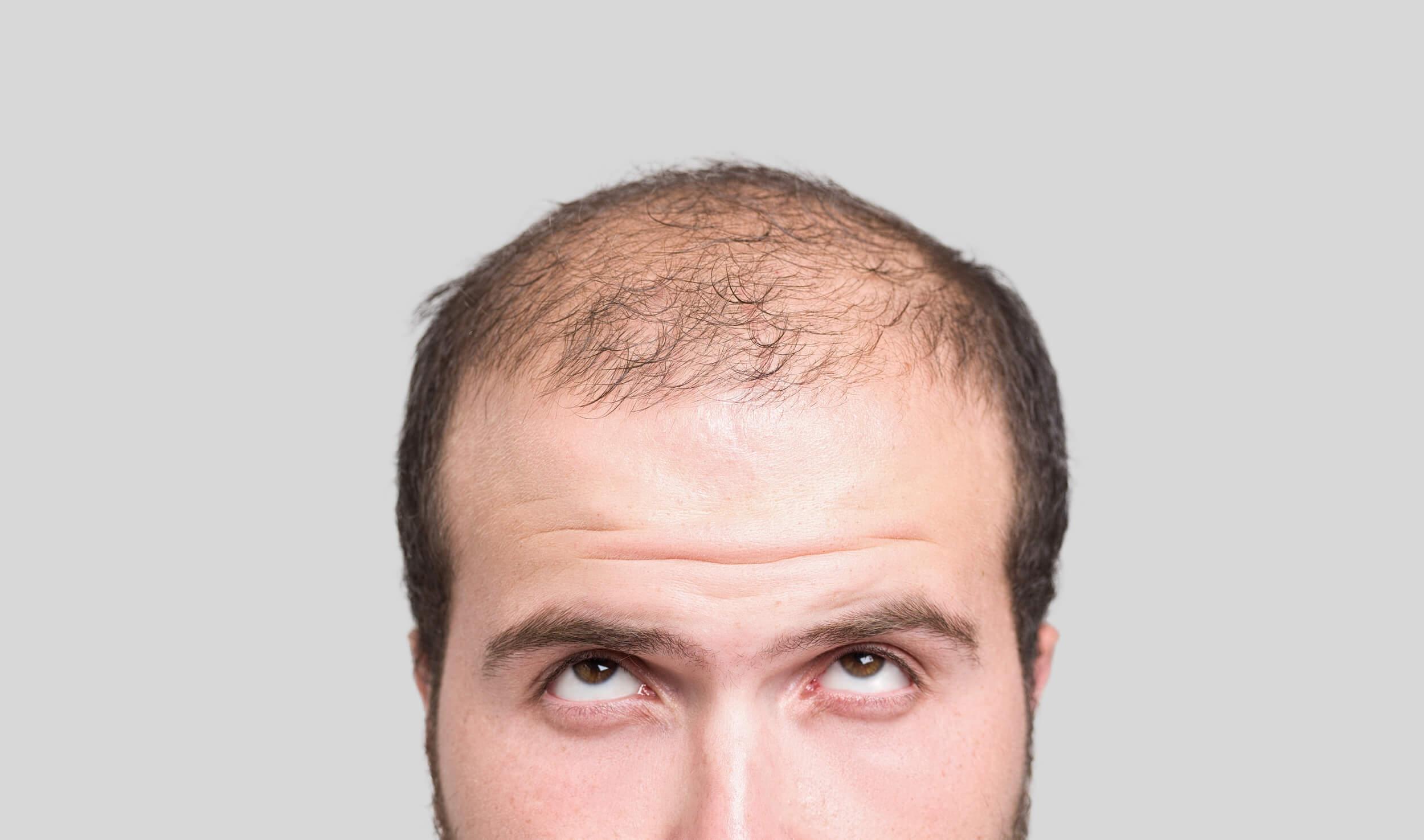 Which hair transplant clinic do I choose - Zty Hair Transplant Turkey