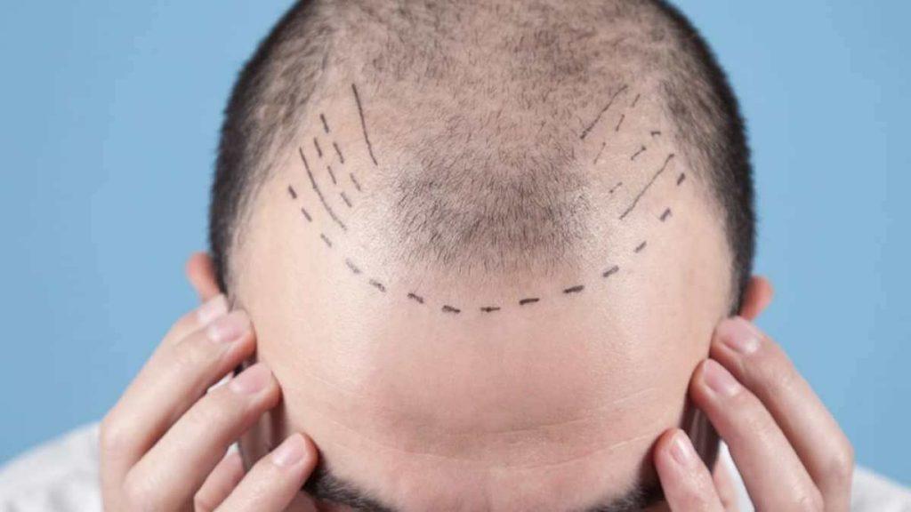 Wie lange dauert die Haartransplantationsoperation - Zty Haartransplantation Türkei