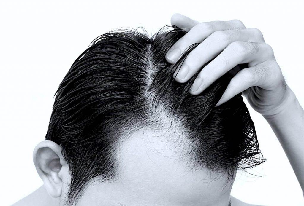 trapianto di capelli per la seconda volta - Zty Trapianto Capelli in Turchia