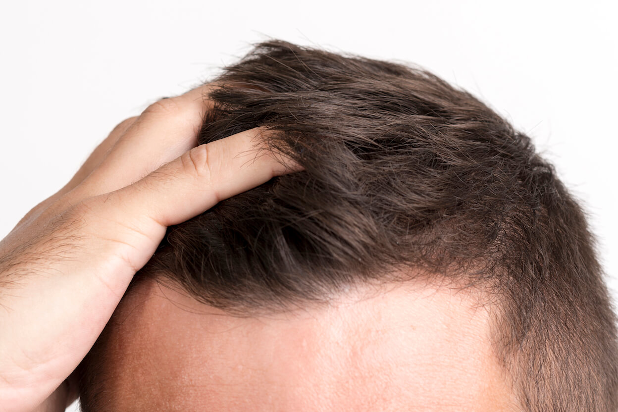 Advantages of hair transplant compared to wigs - Zty Hair Transplant Turkey - Istanbul
