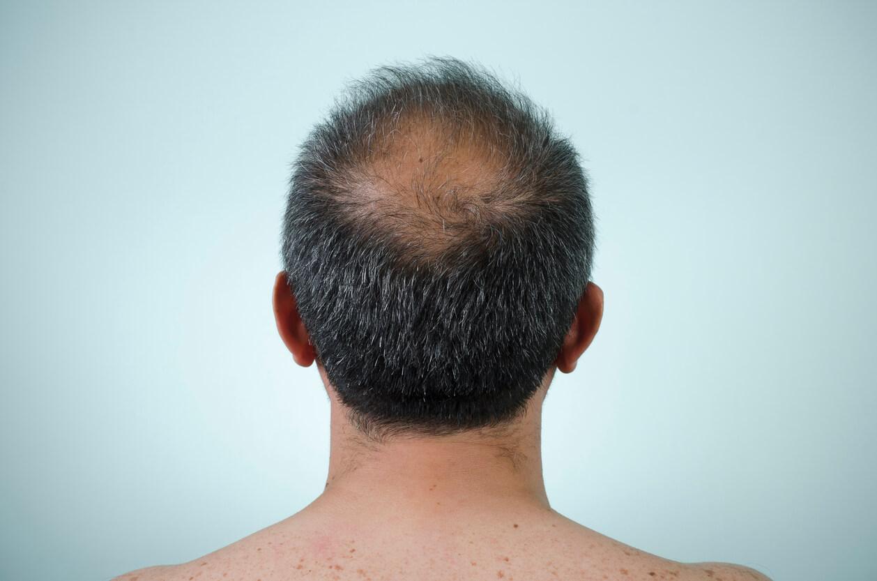 Anti-âge par la transplantation de cheveux - Zty Greffe de Cheveux Turquie