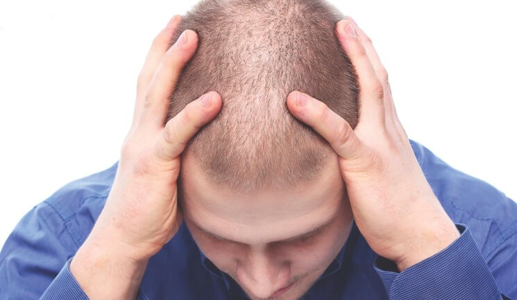 Can a hair transplant at a young age be harmful - Zty Hair Transplant Turkey - Istanbul