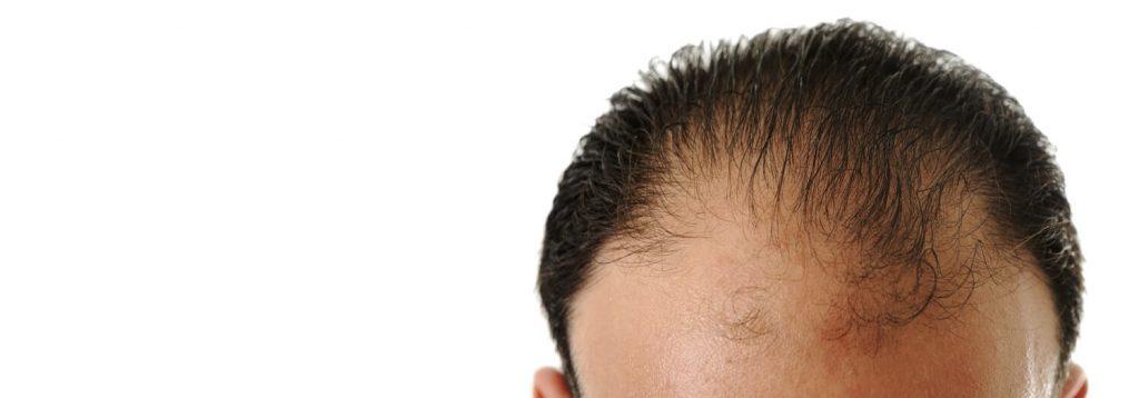 Prévenir une mauvaise greffe de cheveux - Zty Greffe de Cheveux Turquie